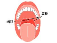 咽頭クラミジア 症状